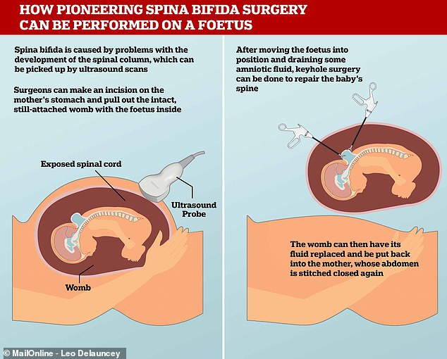 During the pioneering spina bifida surgery, surgeons drain some of the fluid from the amniotic sac and try to repair the spinal column to protect exposed nerves which can cause disability