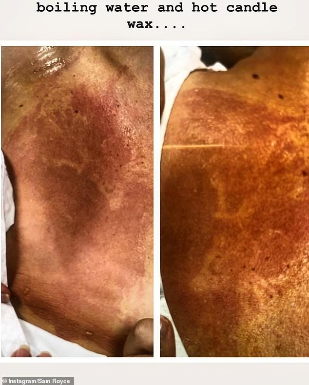 Painful: Sam said she is now focussing on reducing her burn scars (pictured)