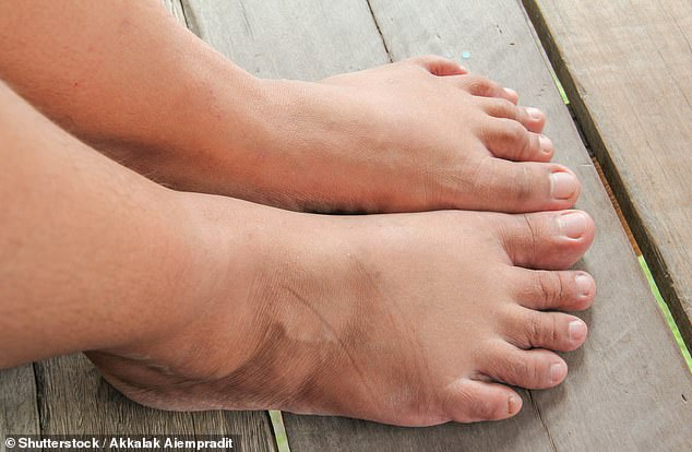 Swelling around your ankles — fluid retention — may be due to a number of different causes. Stock image