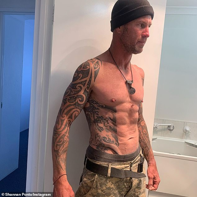 Reality: Shannan shared a photo showing his weight-loss and wrote: 'Hypothermia was brutal. Walking up the hill things went psychedelic. Then absolutely blank. Still no memory now'