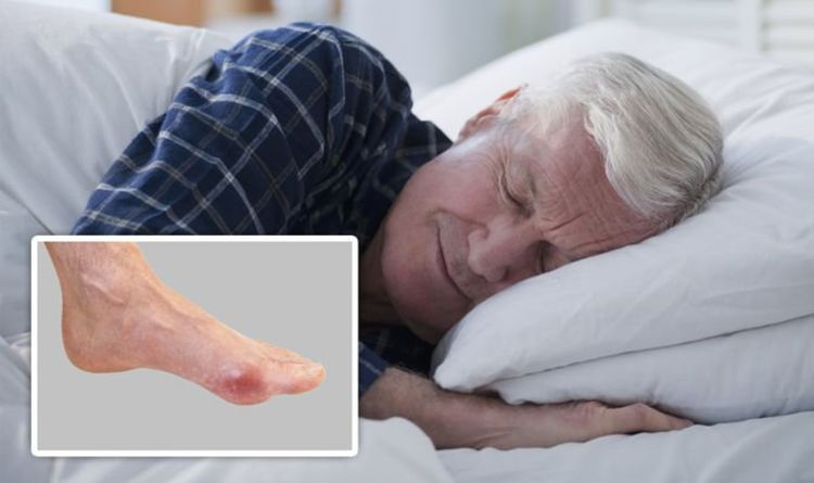 Gout treatment: A 'bed cage' could ease any joint discomfort