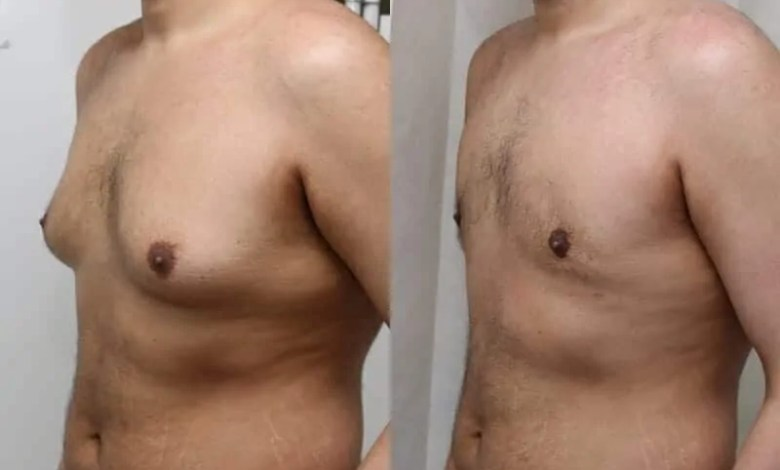 Things to avoid during gynecomastia