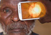 The phone can be used to look at the retina at the back of the eye and check the health of the optic nerve