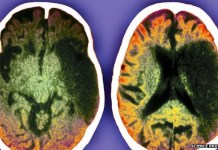 CT scans can predict the risk of further strokes in mild stroke patients, the research suggests