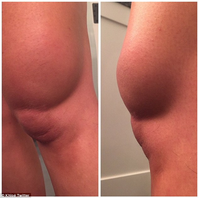 She fell: Khloe Kardashian, 31, suffered a horrific-looking knee injury, which she boldly displayed on social media