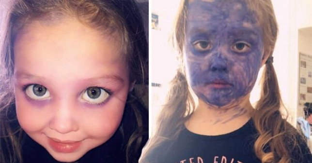 The little girl coloured her face in purple marker