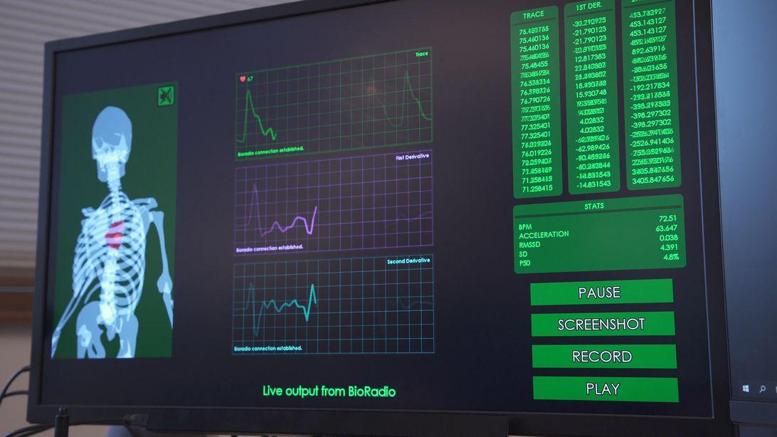 bioradio-ui