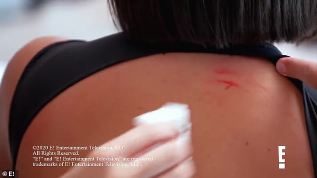 Ouch: In the clip, bloody scratch marks appeared on Kim's back and shoulders