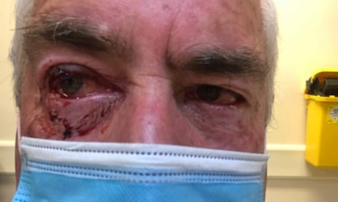 James Glindemann, 68, of Sale, recovers after being swooped by a magpie in the Victorian town of Sale in October.