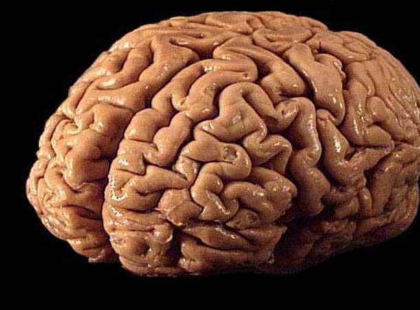 Οι 10 κορυφαίες συνήθειες που καταστρέφουν τον εγκέφαλό σου