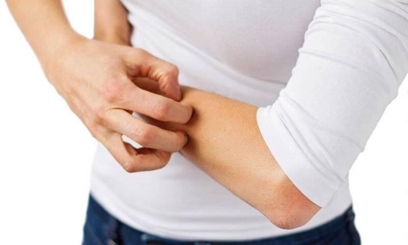 bigstock-Eczema-dermatitis-and-itchy-s-79387837