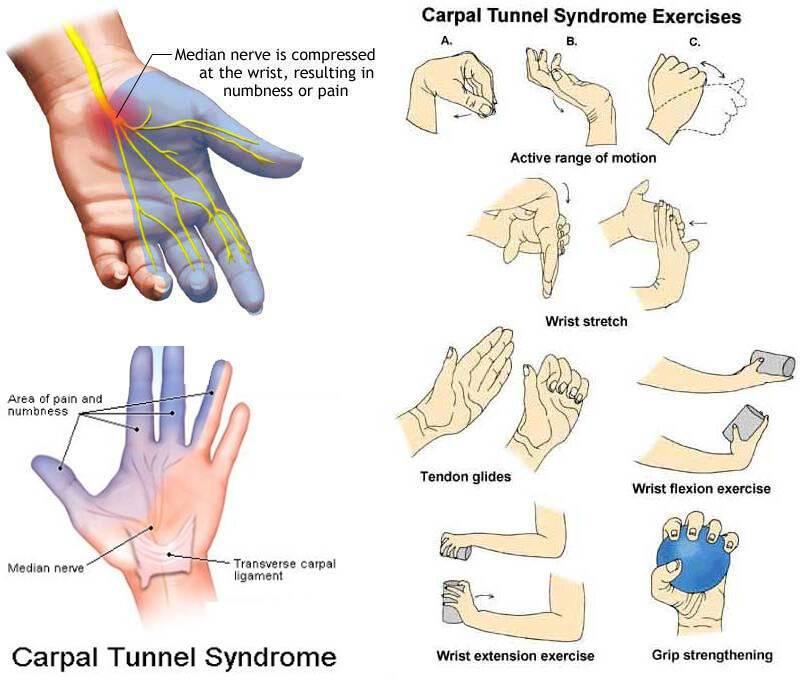 Σύνδρομο καρπιαίου σωλήνα: Ποια δάχτυλα επηρεάζονται – Τι ασκήσεις να κάνετε (εικόνες)