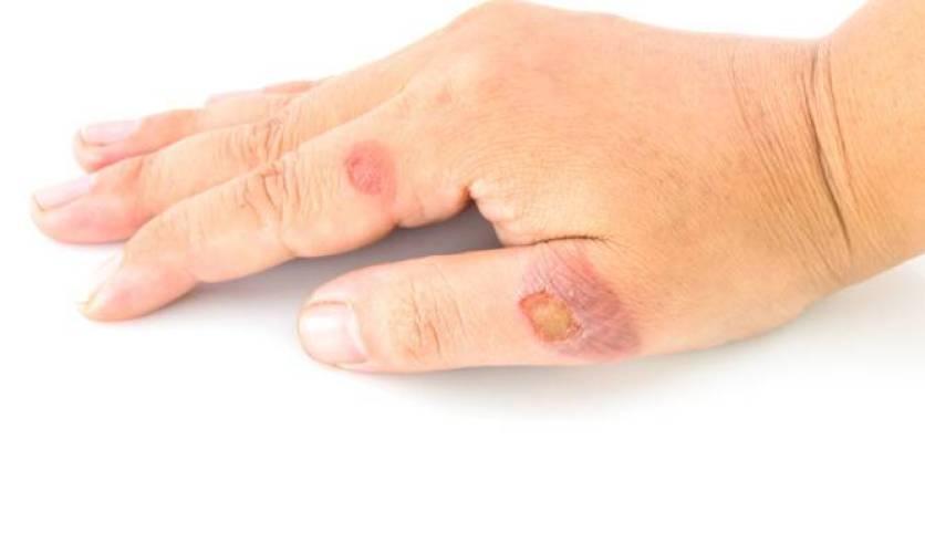 Σταφυλόκοκκος: Εικόνες, συμπτώματα, αίτια, θεραπεία και πρόληψη