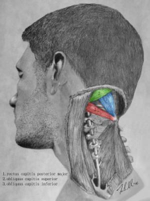 Πονοκέφαλος: Σε ποια σημεία να κάνετε μασάζ για να σας περάσει [σχεδιάγραμμα]