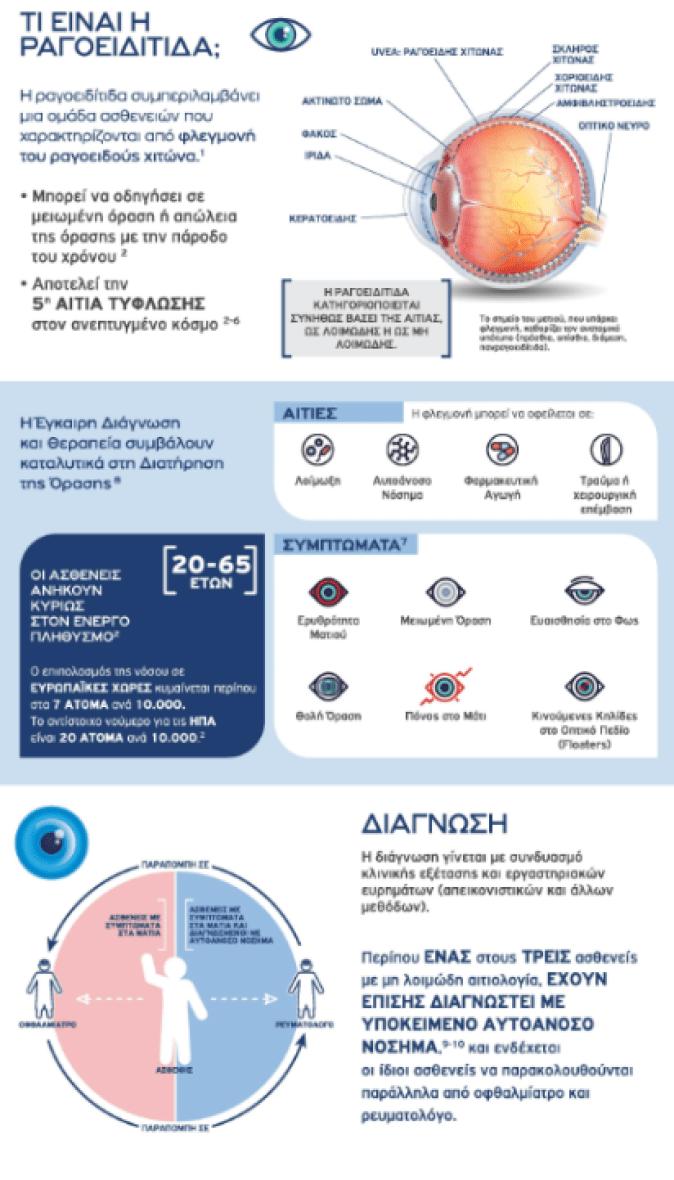 Τι είναι η ραγοειδίτιδα που οδηγεί ακόμα και σε τύφλωση- Infographic