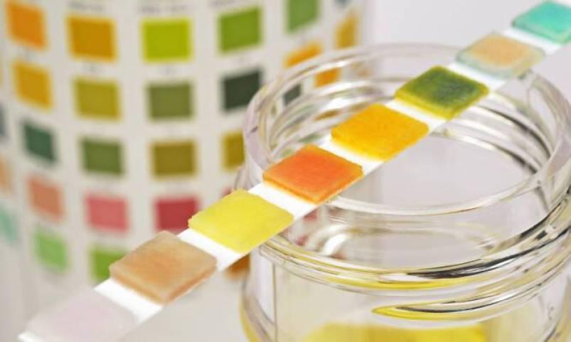 Τι δείχνει το χρώμα στα ούρα για την υγεία σας