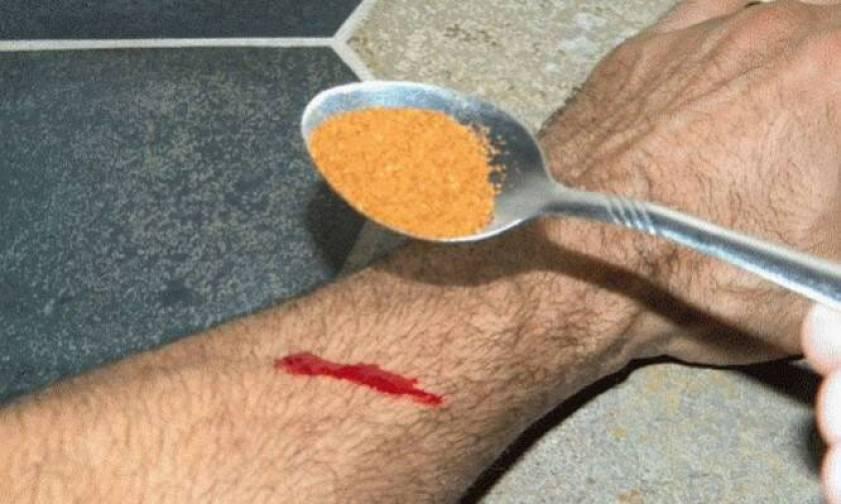 Αιμορραγία: Δείτε ποιο μπαχαρικό (!) την σταματάει