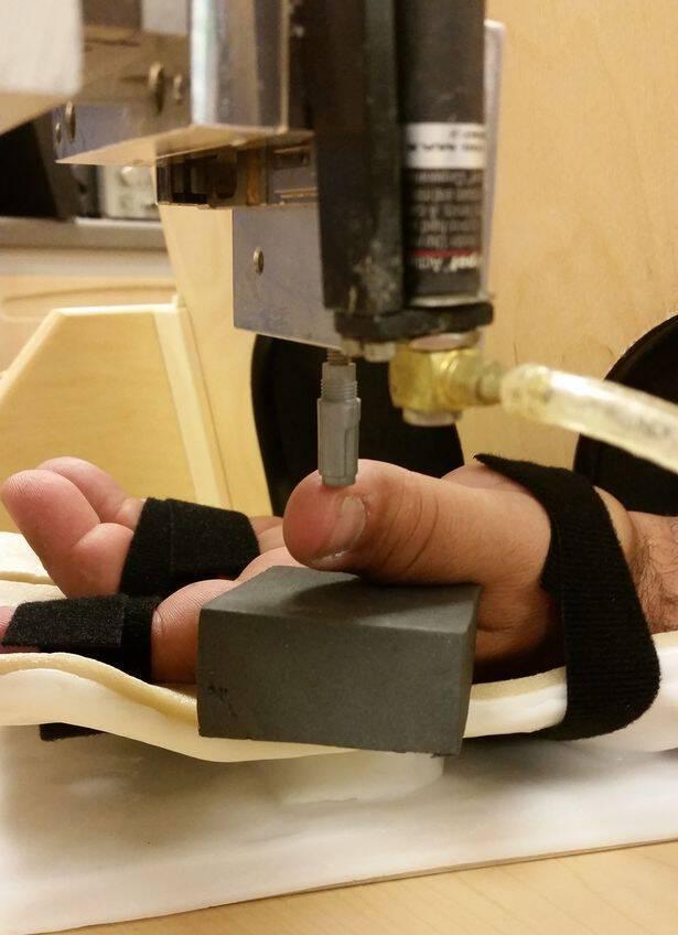 Ρομποτικό χέρι «κάνει δώρο» την αίσθηση της αφής σε ακρωτηριασμένο άνδρα! [pics, vid]