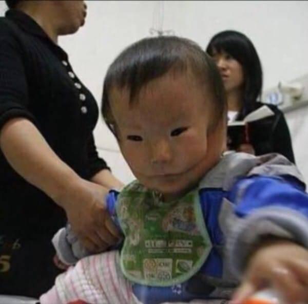 Η μάνα έβαλε τα κλάματα μόλις είδε το πρόσωπο του νεογέννητου μωρού της. Οι γιατροί δεν είχαν ξαναδεί ποτέ κάτι τέτοιο.