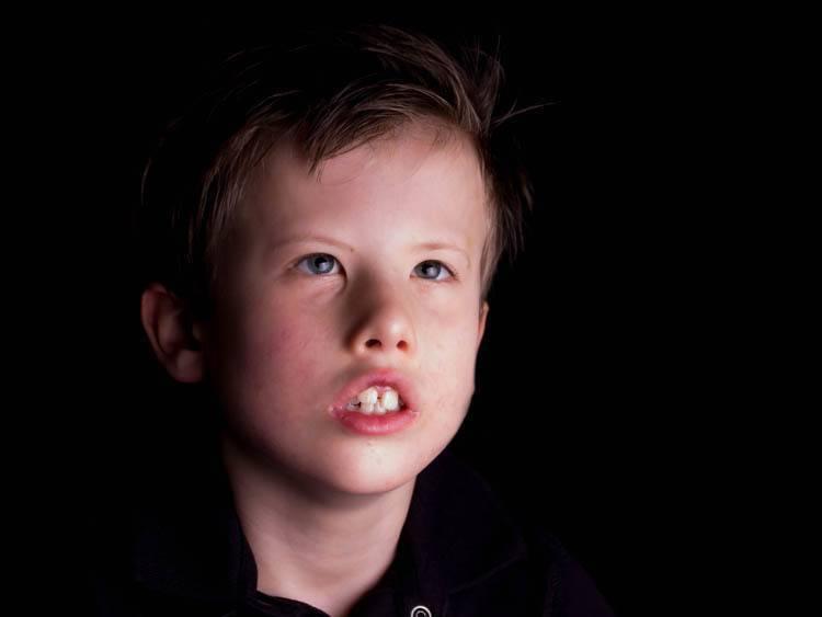 isaac-moebius-syndrome-46f5597e31e819088647a4edd3720afb