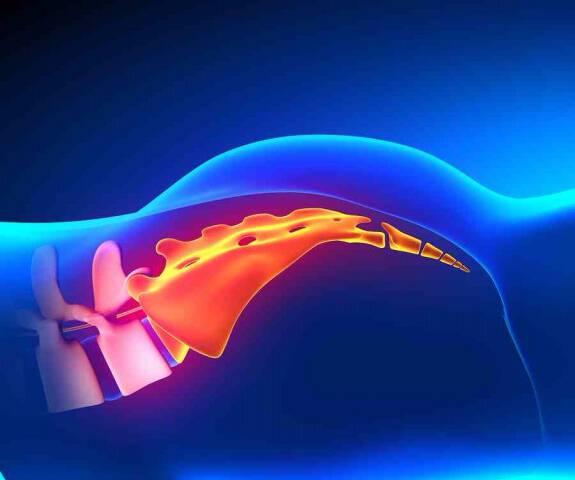Κύστη κόκκυγα: Πώς να απαλλαγείτε χωρίς χειρουργείο