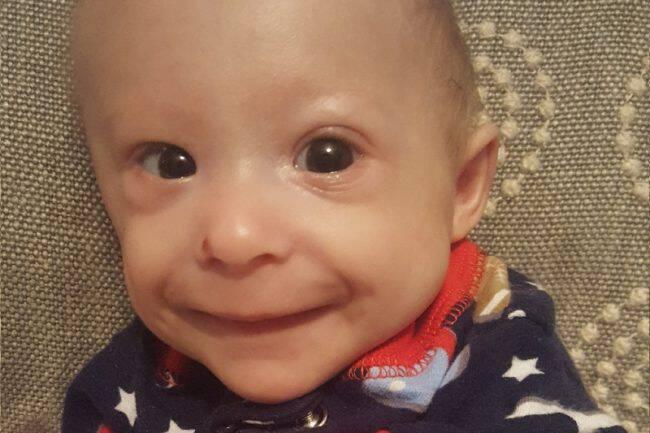 Αυτό το μικροσκοπικό μωρό με σπάνια μορφή νανισμού είναι το πιο χαριτωμένο παιδάκι που έχετε δει και ένας μεγάλος μαχητής.