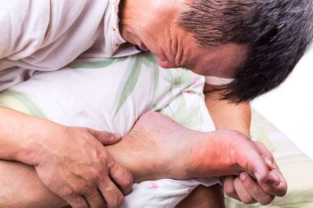 Ουρική αρθρίτιδα: Πώς θα την ξεχωρίσετε από τα σημάδια
