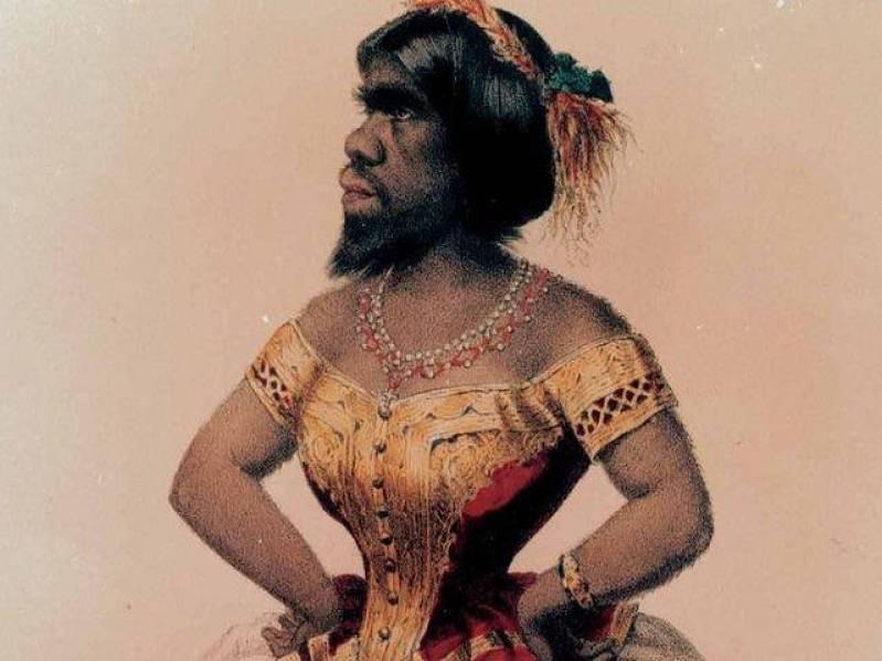 Η «Γυναίκα Πίθηκος». Μια γενετική παραμόρφωση την έκανε αντικείμενο εκμετάλλευσης από τότε που γεννήθηκε έως και 153 χρόνια μετά το θάνατό της!