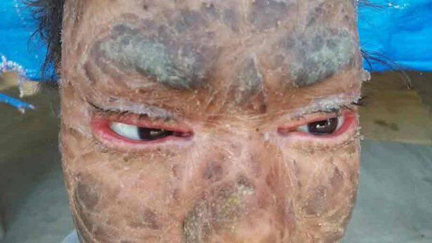 Το κορίτσι «φίδι» αλλάζει δέρμα κάθε δύο μήνες εξαιτίας μια εξαιρετικά σπάνιας ασθένειας