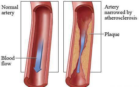 Αθηροσκλήρωση: Πώς και γιατί σχηματίζονται πλάκες στις αρτηρίες [vid]