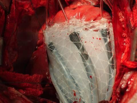 Βηματοδότες τέλος; Δείτε την συσκευή ρομπότ που «αγκαλιάζει» την καρδιά! [vid, pic]