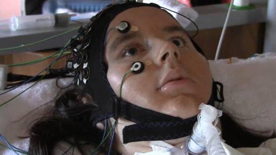 Γράφτηκε ιστορία: Ασθενείς με προχωρημένη Σκλήρυνση μίλησαν εγκεφαλικά μέσω υπολογιστή -ΒΙΝΤΕΟ