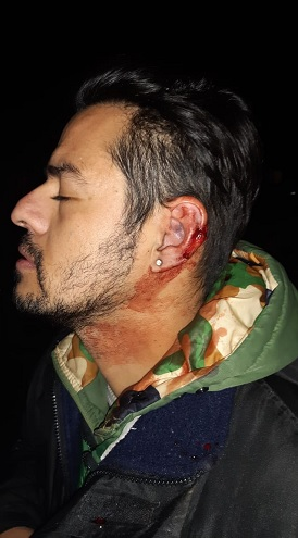 The testimony of one of the wounded during the confrontation