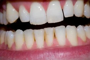 Might CBD be good for gum disease? Photo: oliver.dodd