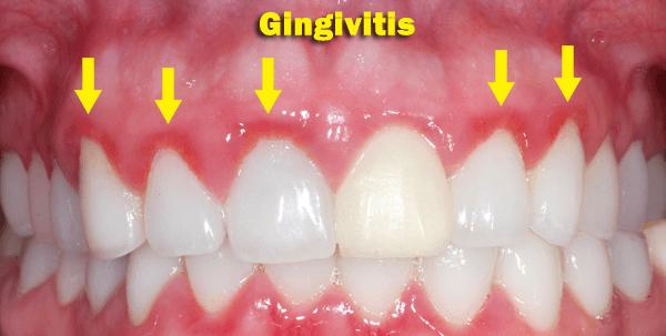 Gingivitis tedavisinde başarısızlık nedenleri: ile ilgili görsel sonucu