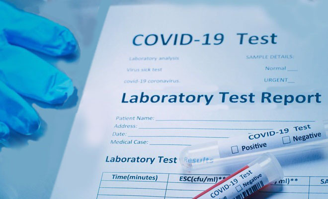 Reports expose sale of false Covid test results in India