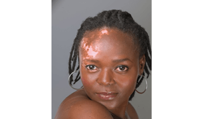 Maduewesi: I drank urine for 4 months over Vitiligo