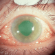 Glaucoma, second most common cause of blindness