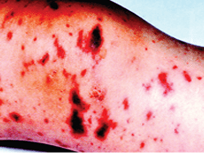 MENINGITIS: The disease, the cure