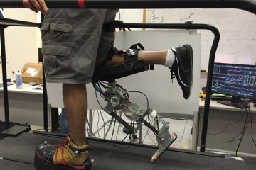 robotic prothesis