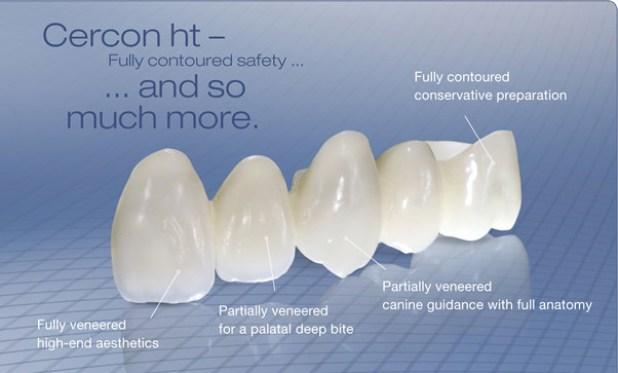 răng sứ cercon ht là gì