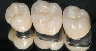 Răng sứ các loại – Ưu nhược điểm – Giá các loại răng sứ