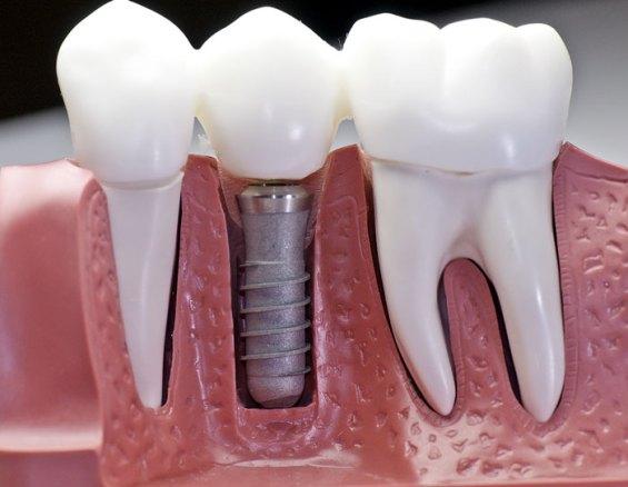 ghép răng Implant giá bao nhiêu