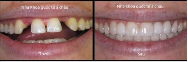 1338522219 news Tin khuyến mãi giảm giá làm răng tháng 5 chào mừng quốc tế thiếu nhi 1 6 (áp dụng từ 15 5 đến 15 6 )