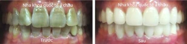 bocrangtetracylineachauquocte 1 - Bọc răng sứ giá bao nhiêu tiền