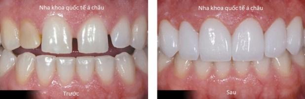 bocsuhn1 - Bọc răng sứ giá bao nhiêu tiền