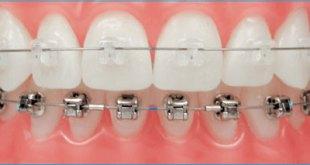 Niềng răng có đau không ?