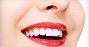 Dịch vụ Niềng răng giá rẻ ở Hà Nội ra sao ?