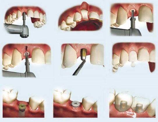 làm răng implant ở đâu tốt