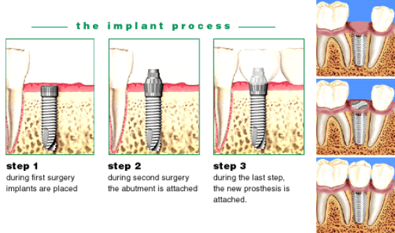 dental-implantsdđ